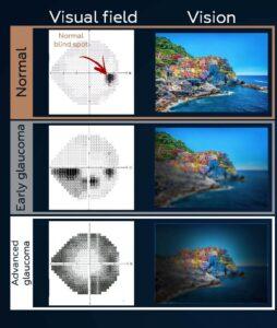 Visual field test