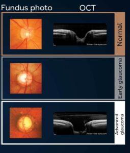 Glaucoma-Tests